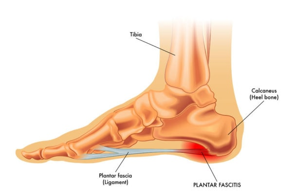Treatments for Heel pain